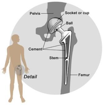 Cementes csipő-protézis