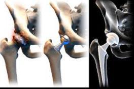 Cement nélküli csipő-protézis