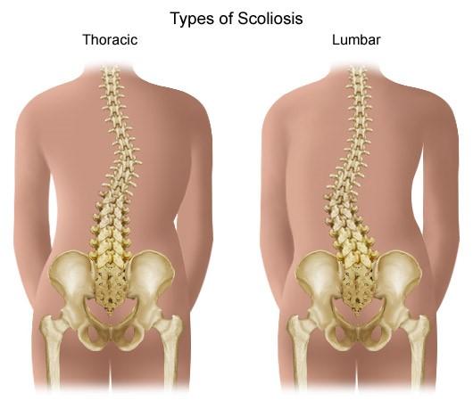 Gerincferdülés (scoliosis)