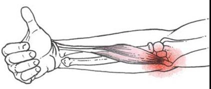 Golfkönyök (Epicondylitis medialis Humeri)