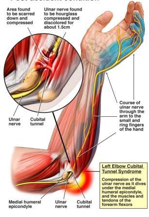 Könyökizületi alagút szindróma (Cubital tunnel syndroma)