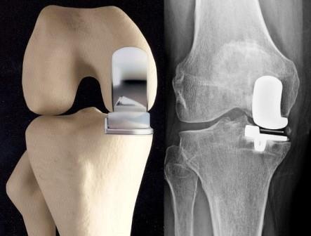 térd protézis1